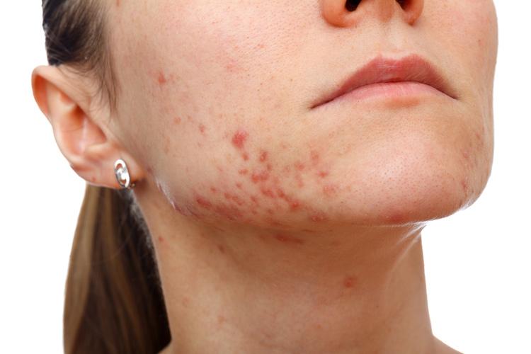 Аппаратная косметология, лечение акне