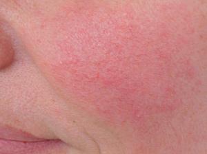 Аппаратная косметология, лечение купероза, фотоомоложение